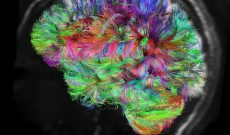 Image for To Boost Brain Health and Performance, Harness Neuroplasticity The Right Way