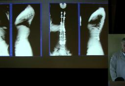 The Relationship Between Chiari Malformation, Syrinx (Syringomyelia) and Scoliosis