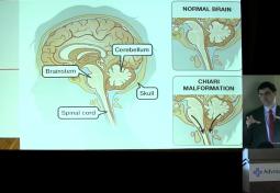 Is My Headache Due to my Chiari Malformation?