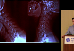Craniocervical Fusion for Craniovertebral Instability