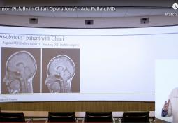Common Pitfalls in Chiari Operations