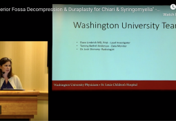 The Great Debate: Posterior Fossa Decompression With or Without Duraplasty for Chiari Malformation & Syringomyelia
