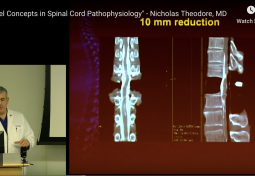 New Concepts in Spinal Cord Pathophysiology