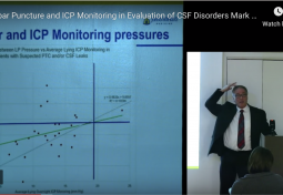 Lumbar Puncture & ICP Monitoring in Evaluation of CSF Disorders
