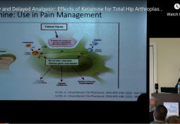 Early & Delayed Analgesic: Effects on Pain in Total Hip Arthroplasty