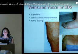 Venous Distensibility in Management of Vascular Pooling in EDS