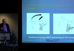 Occipitocervical Fusion in Joint Hypermobility Syndrome with Dysautonomia