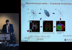 Diffusion Tensor Imaging Assessment of the Brainstem in Chiari Malformation