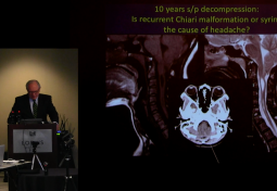 Headache Differential in the Chiari Malformation & Hypermobility Spectrum Patient