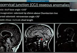 Syringohydromyelia in Patients with Chiari I Malformation: A Retrospective Analysis