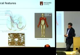 Syringomyelia Pathophysiology: Basic & Clinical Science