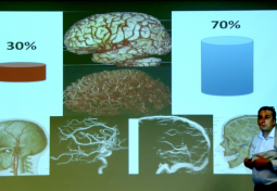 CSF & Cerebral Blood Flow: What is Normal Flow?