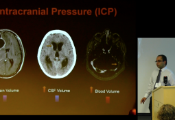 CSF Pressure Reduction Results in Dynamic Changes in Optic Nerve Angle on MRI