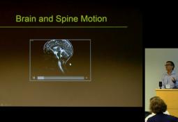 Measuring Brain Displacement with DENSE MRI