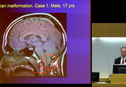 Cerebellar Cognitive Affective Syndrome: Anatomy & Implications for Chiari