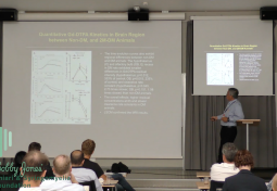 Imaging & Modeling Glymphatic Responses in Diabetes
