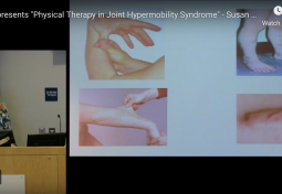 Physical Therapy in Joint Hypermobility Syndrome
