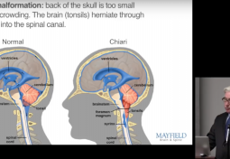 Chiari Surgery: Expectations & Recovery
