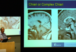 Neurological & Spinal Disorders in EDS