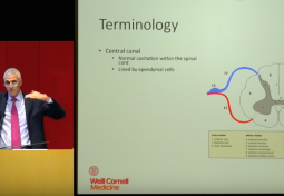 Syringomyelia: Chiari Malformation With & Without a Syrinx