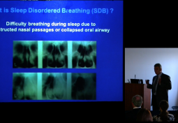 Temporomandibular Joint Dysfunction & Sleep Disorders