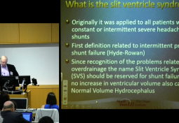 DIAGNOSIS & MANAGEMENT OF SLIT VENTRICLE SYNDROME