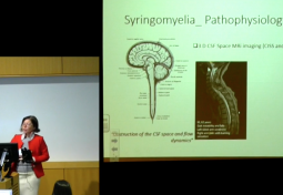 CURRENT MANAGEMENT & TREATMENT OF TETHERED CORD & SYRINGOMYELIA