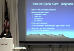 Tethered Spinal Cord Syndrome
