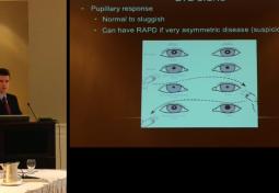 Pseudotumor Cerebri: Ocular Manifestations and Management