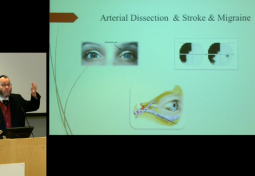 Neuro-ophthalmology of Connective Tissue Disorders