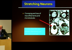 Neurosurgical Management of Hereditary Hypermobility