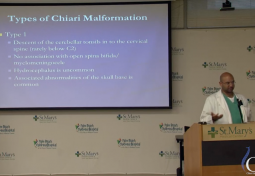 Chiari Malformations: Diagnosis & Treatment