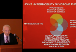Prevalence of Hypermobility and How it Manifests in the General Population