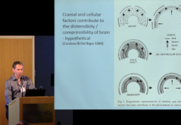 Pathogenesis and Pathology of Hydrocephalus