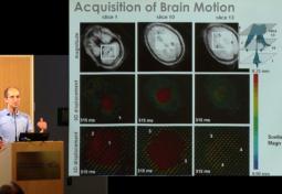 Near-Wall Ventricular Cerebrospinal Fluid Dynamics