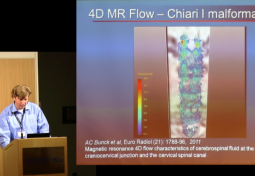 4D MR Flow Imaging: Experiences in Hemodynamics and Potentials in CSF Hydrodynamics