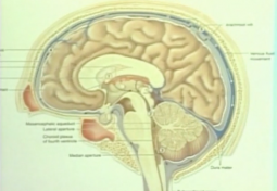 Chiari Diagnosis and Management: A Multidisciplinary Approach