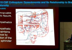 Dysautonomia and its Relationship to Brainstem Deformity