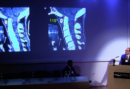 London Roundtable: Clinical case presentations of cranio-cervical instability