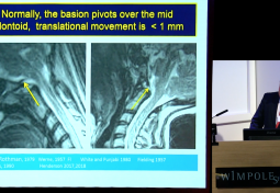 London Roundtable: The case for addressing cranio-cervical instability