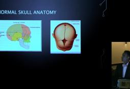 Craniosynostosis and Chiari Malformations