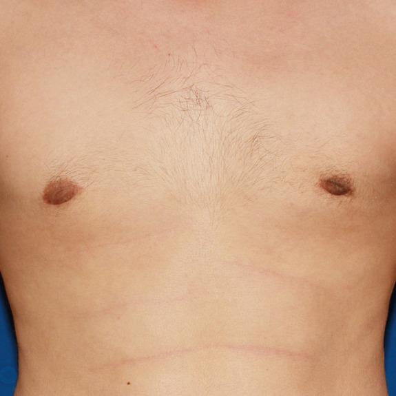 Nipple on male bump white A Breast