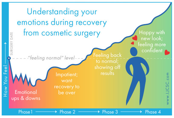 after gynecomastia surgery