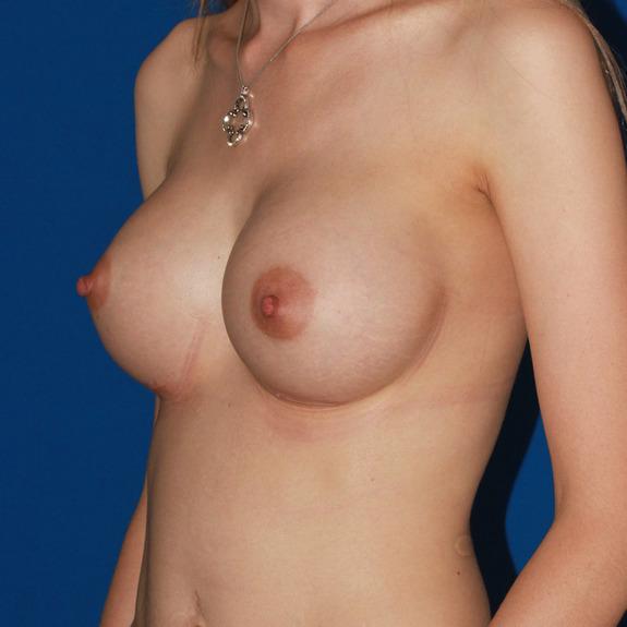 healing of breast augmentation Foundation