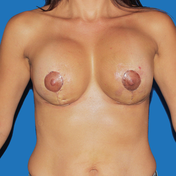 healing of breast augmentation Conglomerate filled