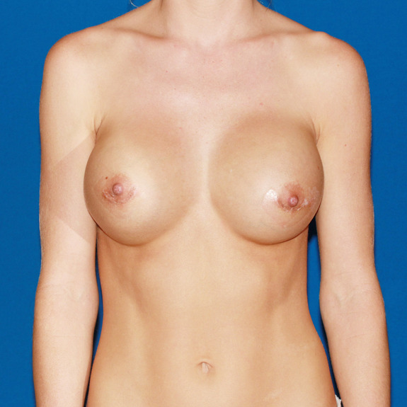 The process breast
