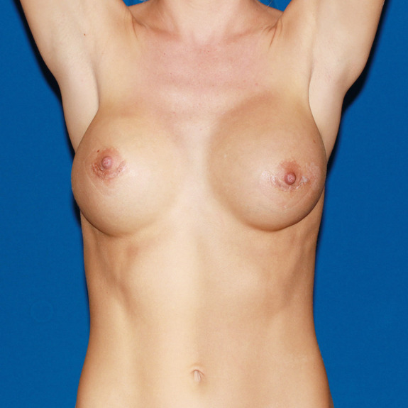 healing of breast augmentation services