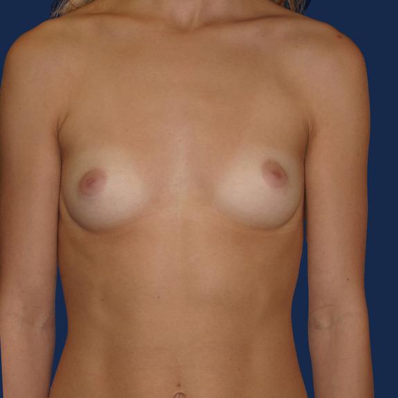 healing of breast augmentation retention
