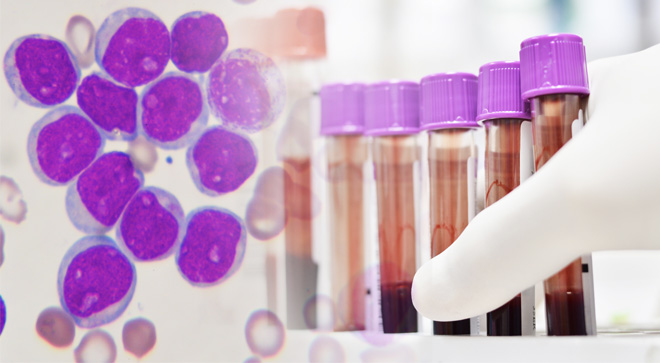 CLL chronic lymphocytic leukemia research trial regimen