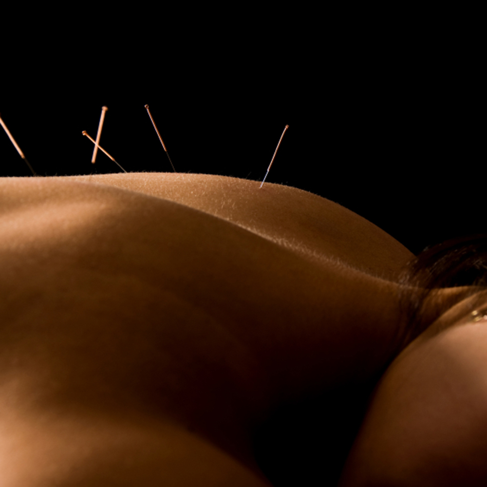 Acupuncture Reduces Symptom Burden in Patients With Multiple Myeloma